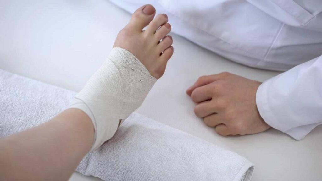 Pie femenino con vendaje funcional para esguince de tobillo mal curado