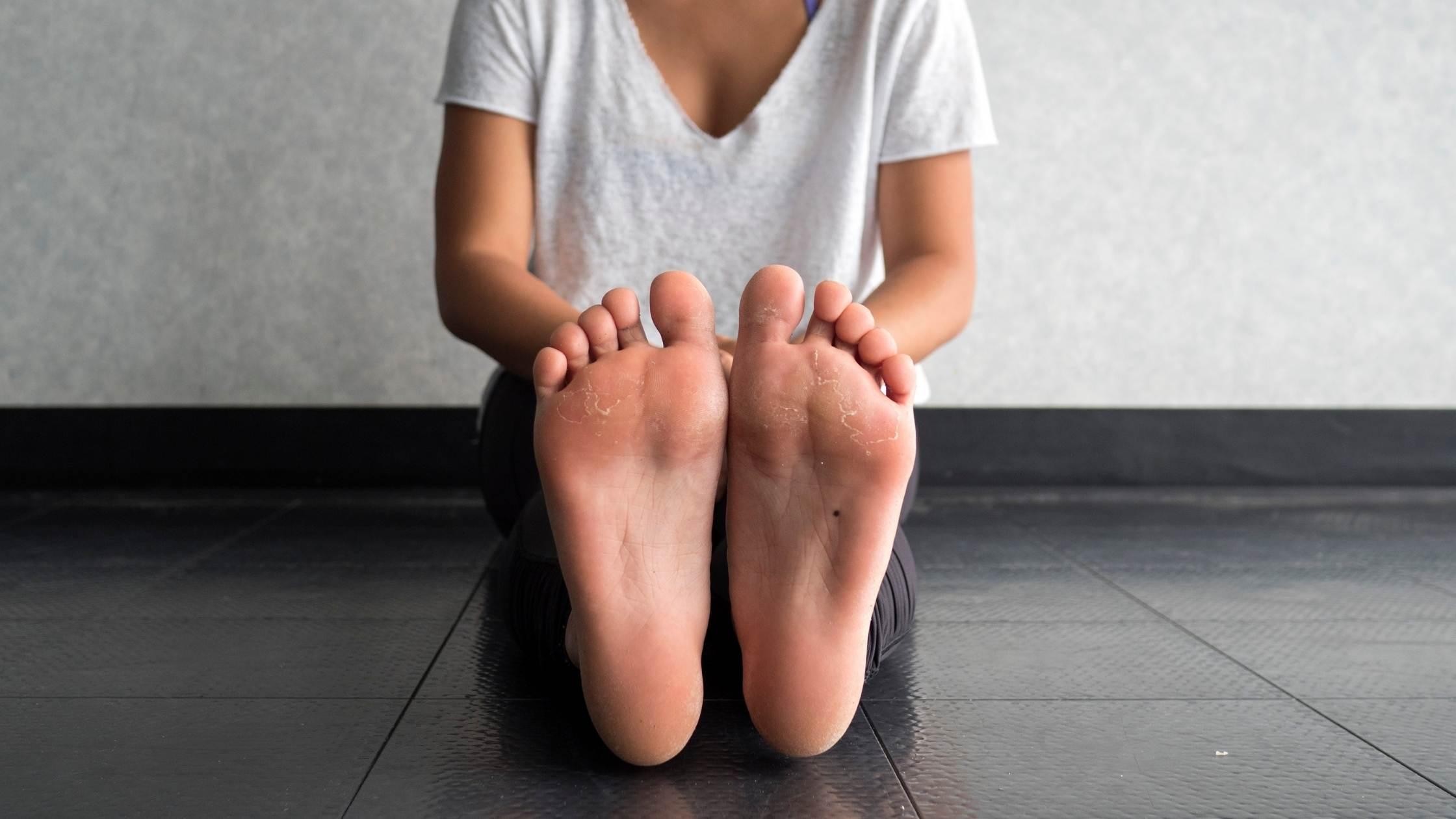 Mujer sufre los callos y durezas en sus pies