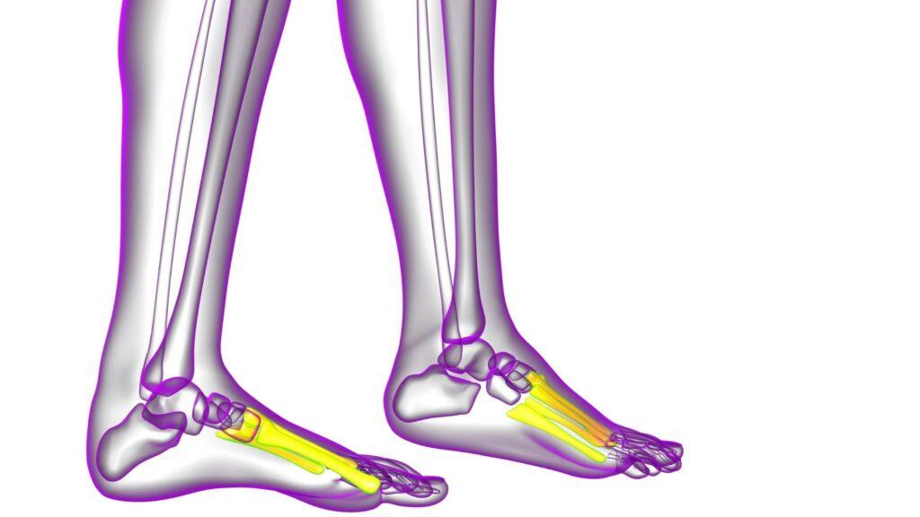 Huesos metatarsianos que producen dolor debajo del dedo gordo del pie