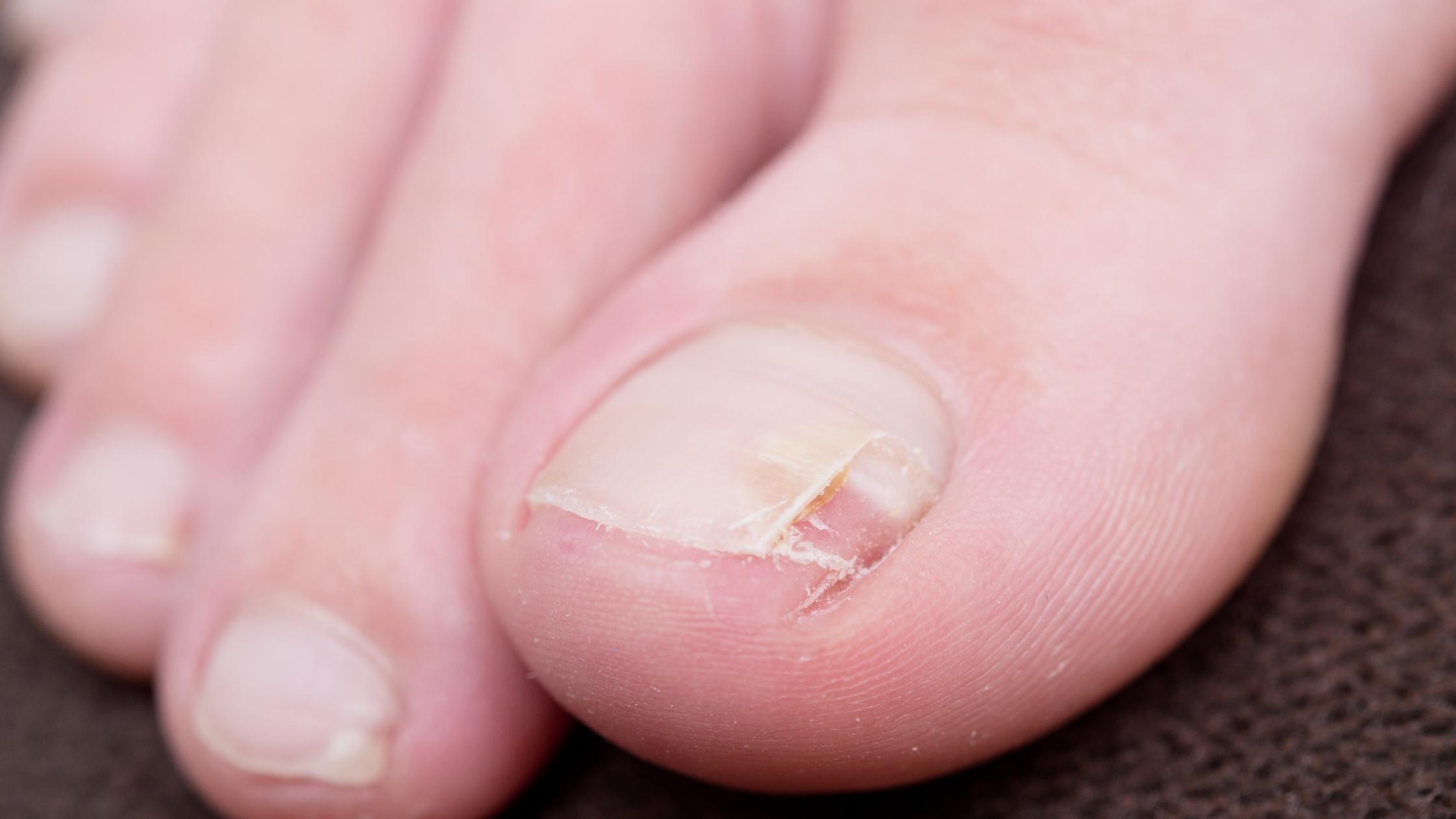 Remedios caseros para uñas encarnadas.